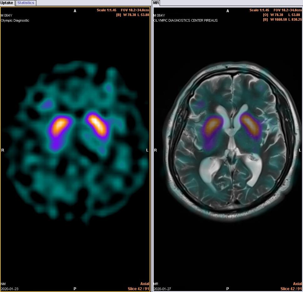 Μελέτη βασικών γαγγλίων εγκεφάλου ( fusion)