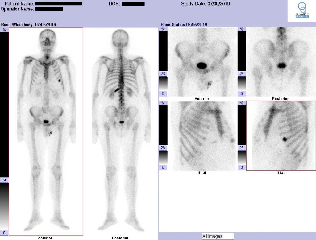Σπινθηρογράφημα οστών-Ολόσωμη