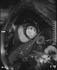 Εγκάρσιος άξονας με έμφραγμα μυοκαρδίου
